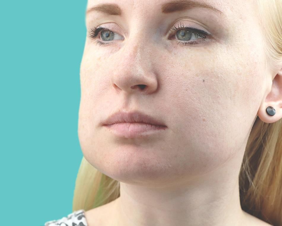 LCIAD dental emergency swelling pain raised temperature