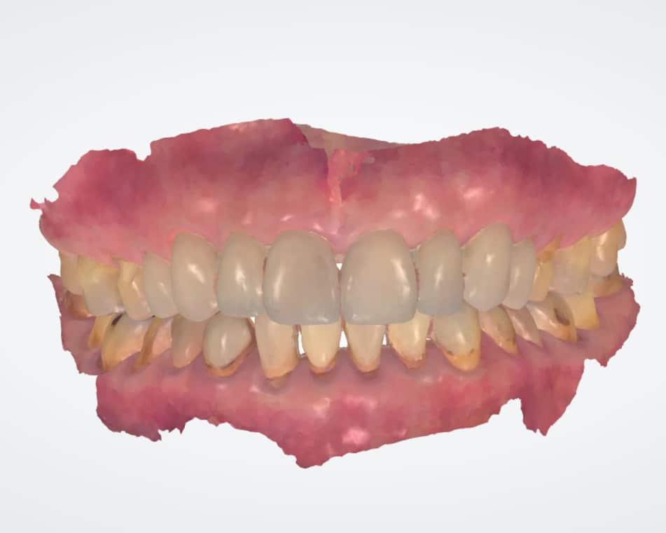 LCIAD 3-Shape intra oral scan upper and lower