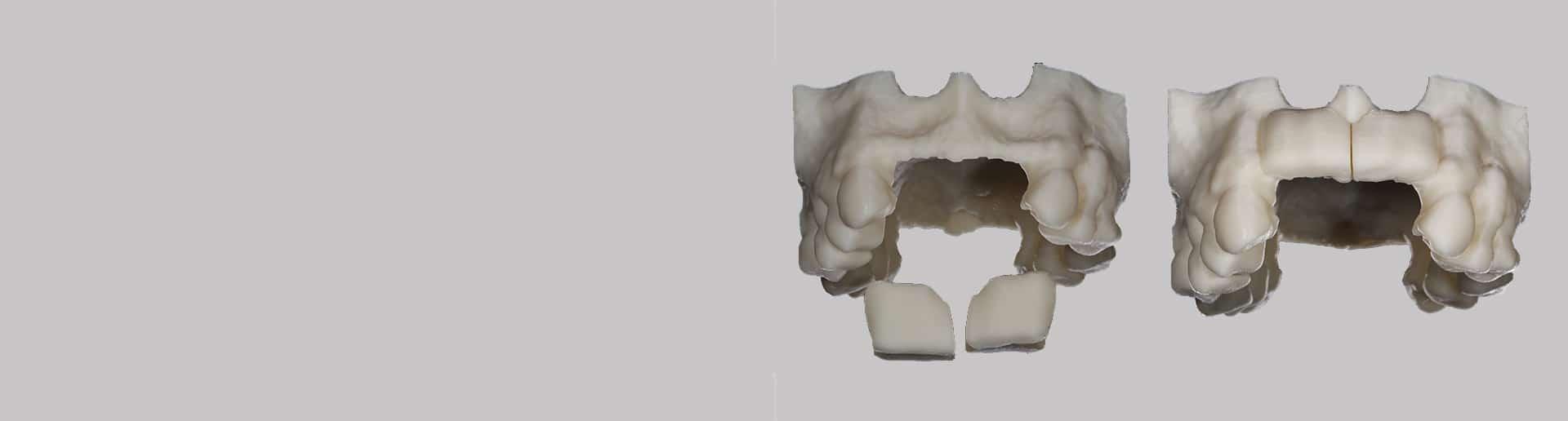 Bone and tissue regeneration