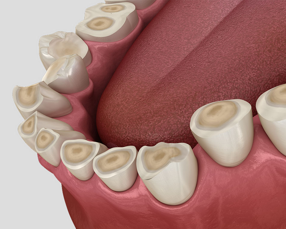 LCIAD Dental tooth wear attrition brxism tooth surface loss