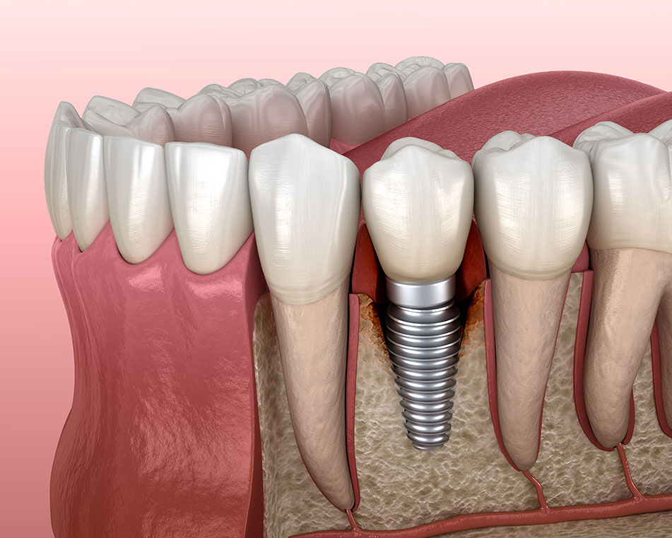 LCIAD Peri-implantitis infection around dental implant