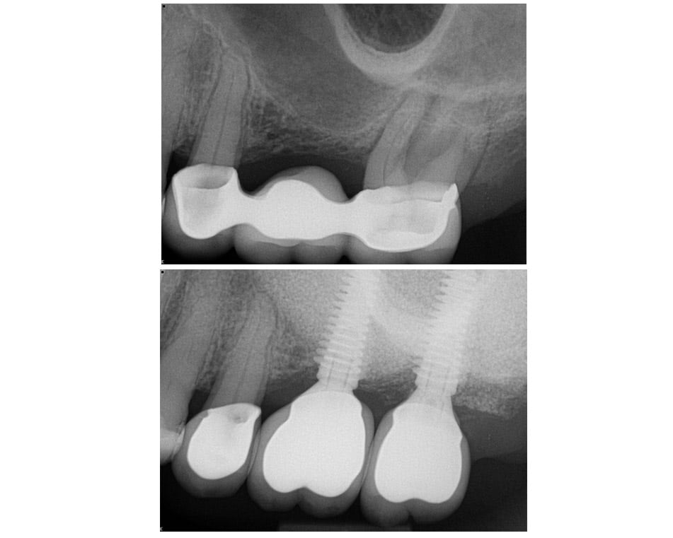LCIAD Sinus augmentation and implants pre-op and post-op