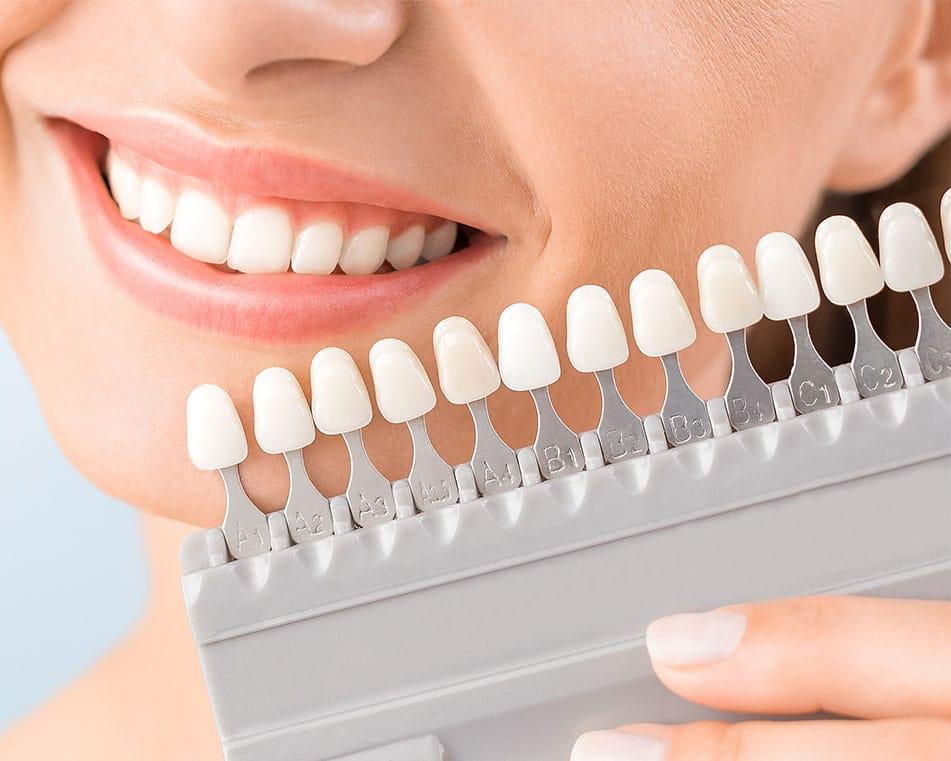 LCIAD tooth whitening Vita shade tab