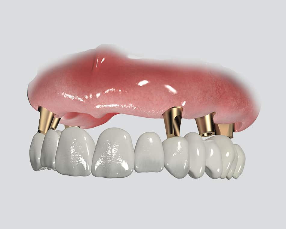 LCIAD Full aupper arch implant bridge