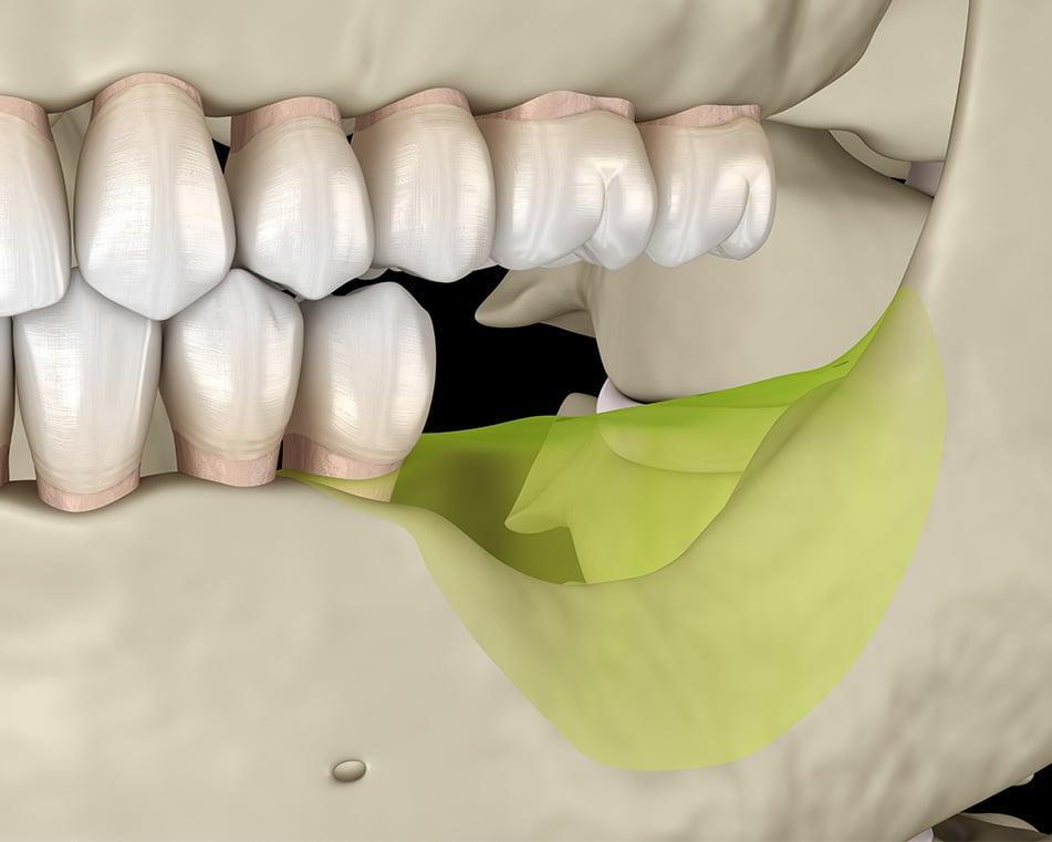 LCIAD bone volume loss posterior mandible