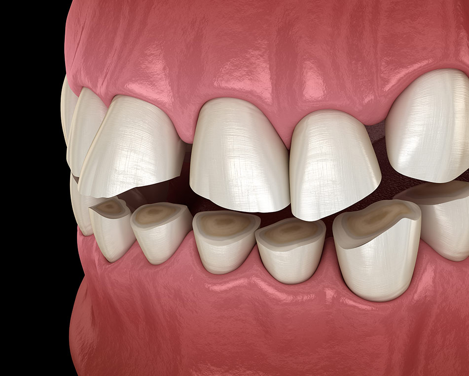 LCIAD bruxing grinding clenching tooth wear