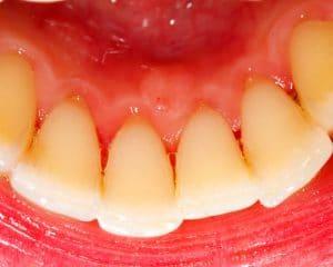 Halitosis - preventing bad breath